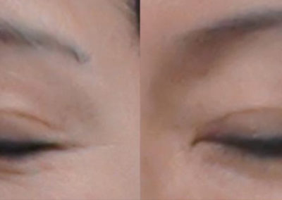 before-after-eyebrows